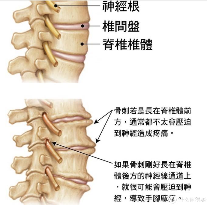 腰疼背疼,是肌肉拉伤还是坐骨神经痛?带你找到根源,六个动作去缓解