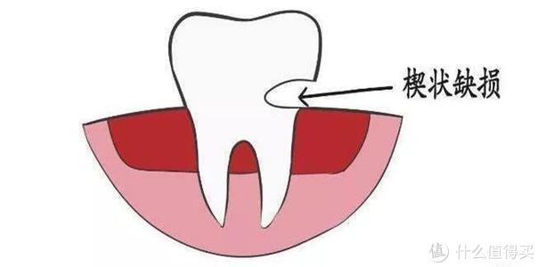 刷牙刷不干净?口腔有疾病?选择这款清洁力超强的奇异鸟电动牙刷