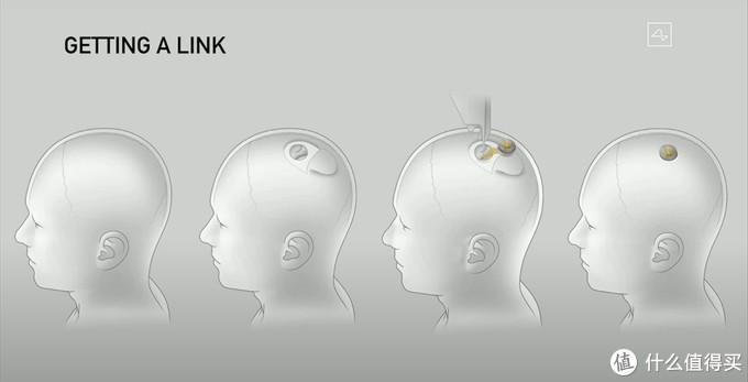 马斯克:智能手表和手机已过时,脑机接口才是未来技术