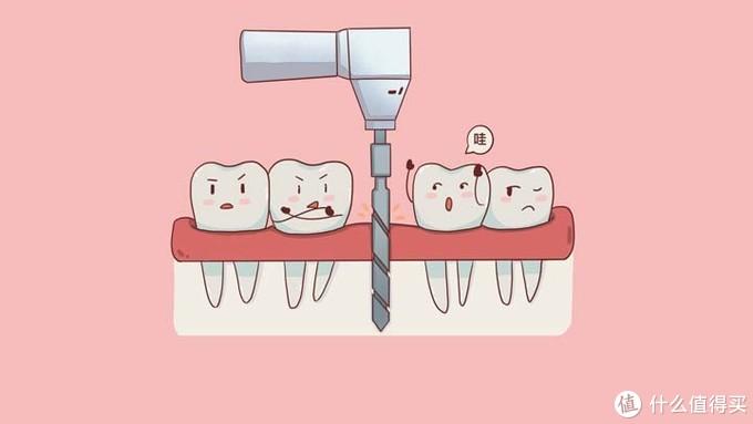 老年人种牙两三关键事【依然干货】