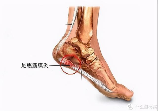 足跟痛肿么办,足底筋膜护踝可以拯救你!