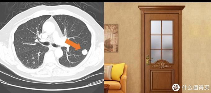 体检发现肺结节,我是不是要死了?