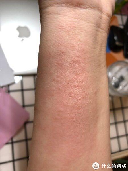 总结8年的湿疹恢复全过程‼️真的太心酸了…