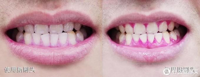 抓住影响牙齿健康的幕后黑手,电动牙刷刷头的探索和推荐