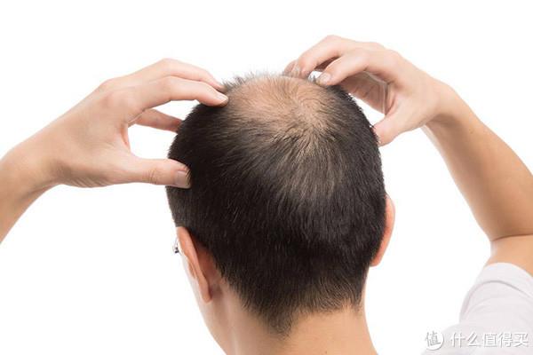 熬夜真的会脱发吗?90后打工仔亲述熬夜后果有多惨?