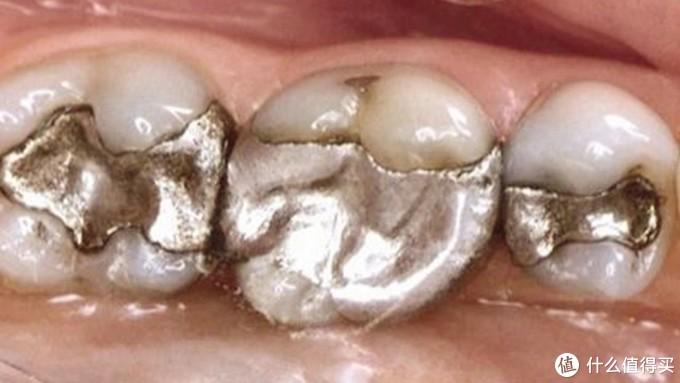 牙齿发现浅龋,我该如何选择补牙项目?补牙前你需要了解的一些小知识
