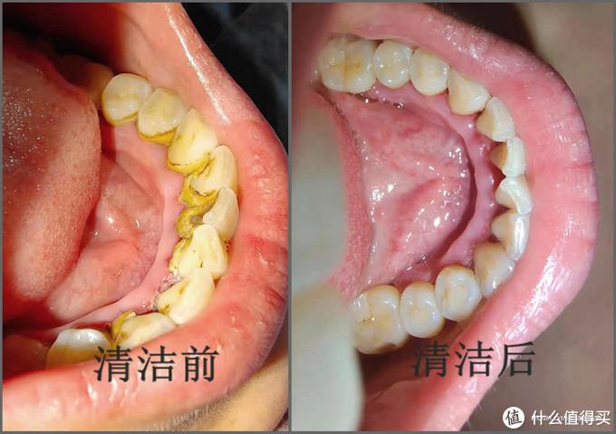 素诺超声波洁牙仪T11Pro评测:全程可视,智能护龈