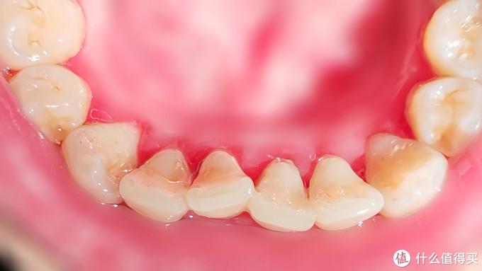 比电动牙刷更值得种草,实测牙结石全碎掉:素诺可视洁牙器T11Pro体验