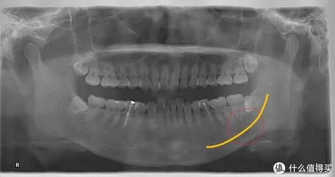 """下颌骨上有个""""大洞"""",手术前我专门去吃了火锅"""