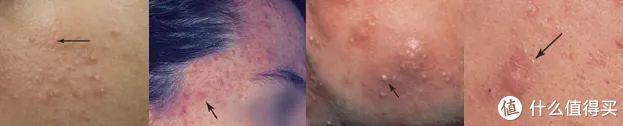 青春期都过了,还会冒痘?改善痘肤的各种方法