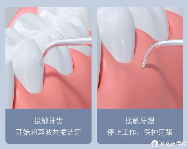 素诺可视超声波洁牙仪,畅享洁净的口腔护理