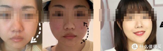 对不住线雕提升一周后的图片太丑!面部线雕失败图片吓坏娘亲!