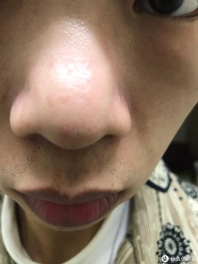 论男生的脸部护理