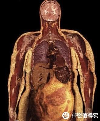 很瘦的人怎么减小肚子?对症下药!4个动作解决顽固小肚子!
