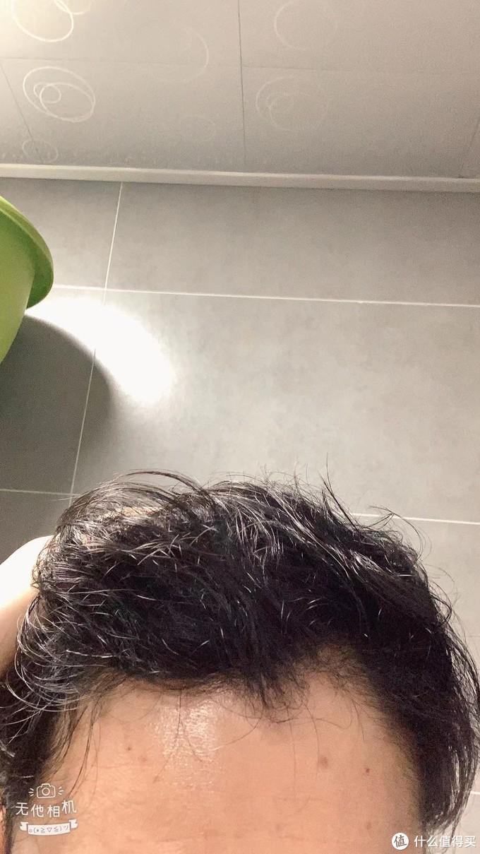 顶部头发2