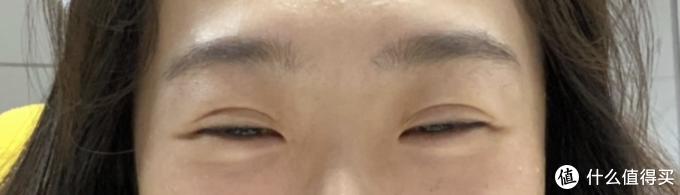 13年前做的双眼皮到现在还好吗?双眼皮带给我的变化