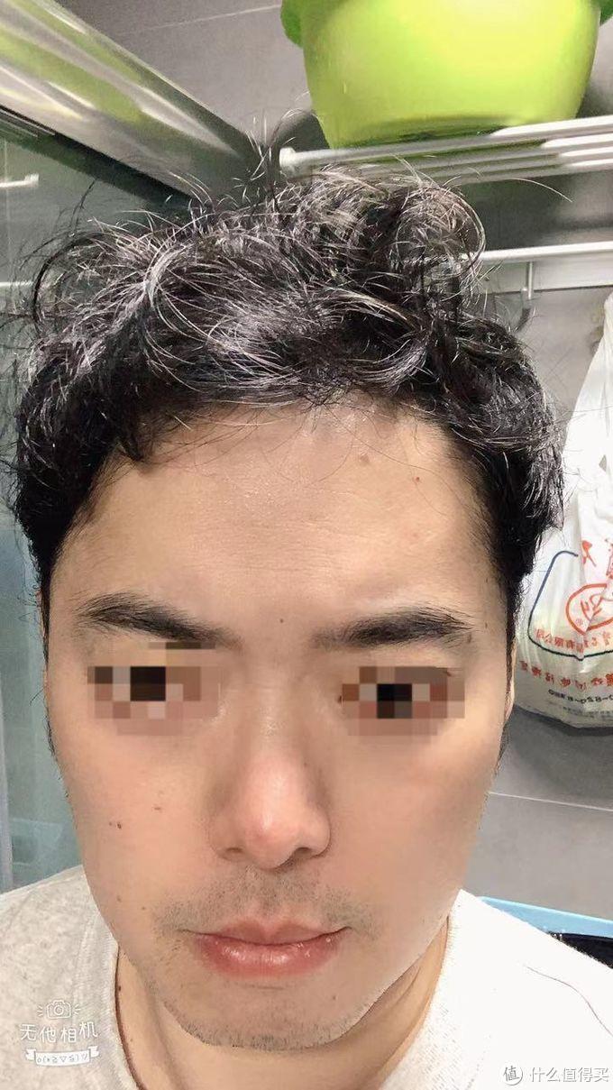 头发满了2