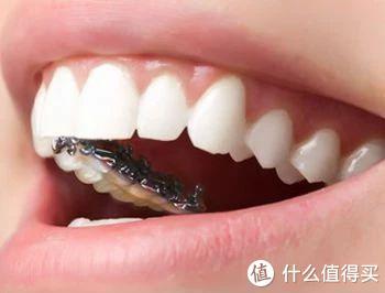 牙齿矫正怎么选牙套?各种牙套有哪些优劣势?这篇给你讲清楚