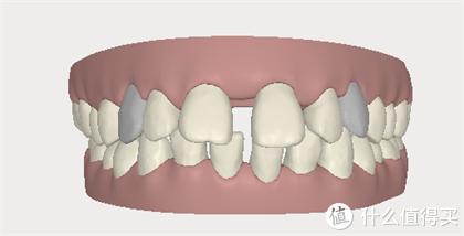 口臭、蛀牙、牙缺失 ...成年人必须要了解的的这4种口腔项目