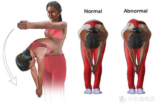 你知道什么是脊柱侧弯吗?儿童脊柱侧弯危害有多大?