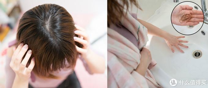 最近发现头顶出油、稀疏,洗完头发后水池有掉落的头发。保护头发也被我重视了起来。