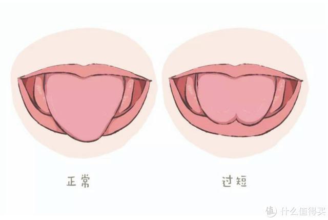 剪绊舌(舌系带矫正术),孩子该不该挨这一刀?