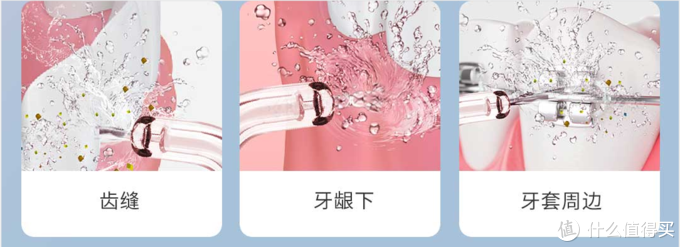 今天你洗牙了吗?--英普利弹冲水流冲牙器使用分享!