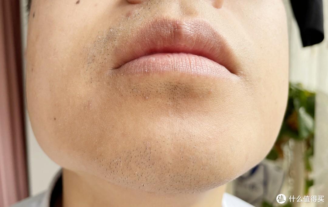 左右两侧下巴剃须对比。