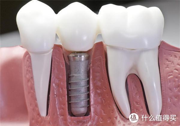 你绝不知道的种植牙内幕揭秘!三甲牙医告诉你种植牙的品牌选择与收费!