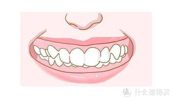 戴过牙套的人脸型都变了吗?
