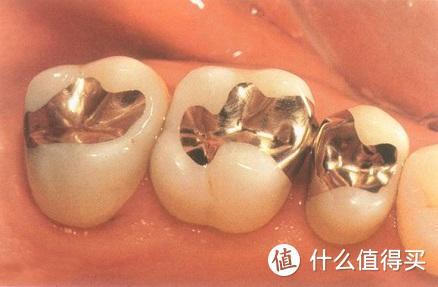 曾经一个月补4次牙的人告诉你:不同的补牙材料有哪些优缺点?