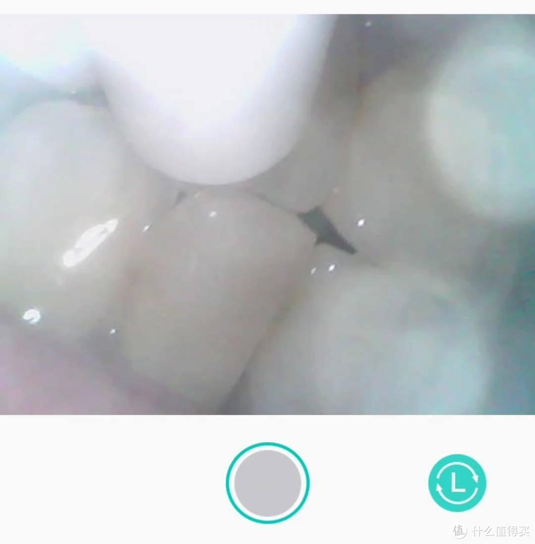 冲牙器居然也有摄像头?美的智能SPA冲牙器
