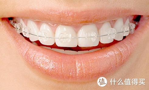 急!牙齿矫正前需要知道的小知识居然有这么多?速点击