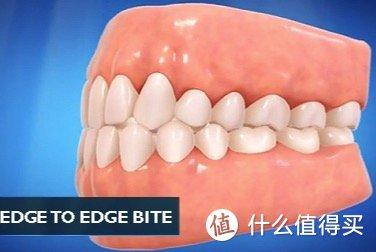 成年人还能整牙吗?不会白花钱了吧?带你了解成年人整牙的小秘密