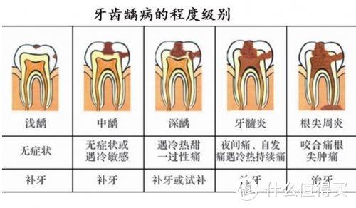 儿童虫牙蛀牙龋(qu)齿有什么坏处?怎么解决?
