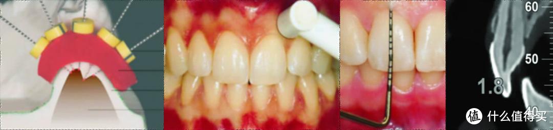 从左到右:穿刺法、超声法、观测探针法、锥束CT法