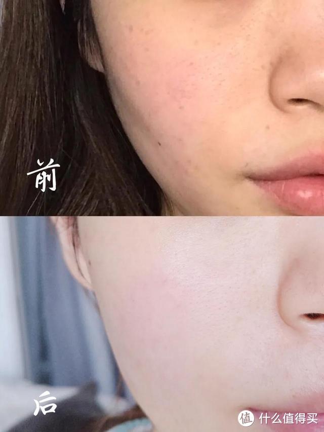 烟酰胺精华液可以淡斑吗?肤泊漫烟酰胺精华液怎么样?